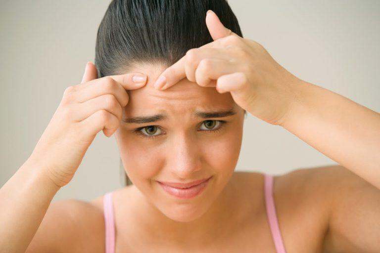 7 Lỗi thường gặp khi chăm sóc da mụn không thể bỏ qua